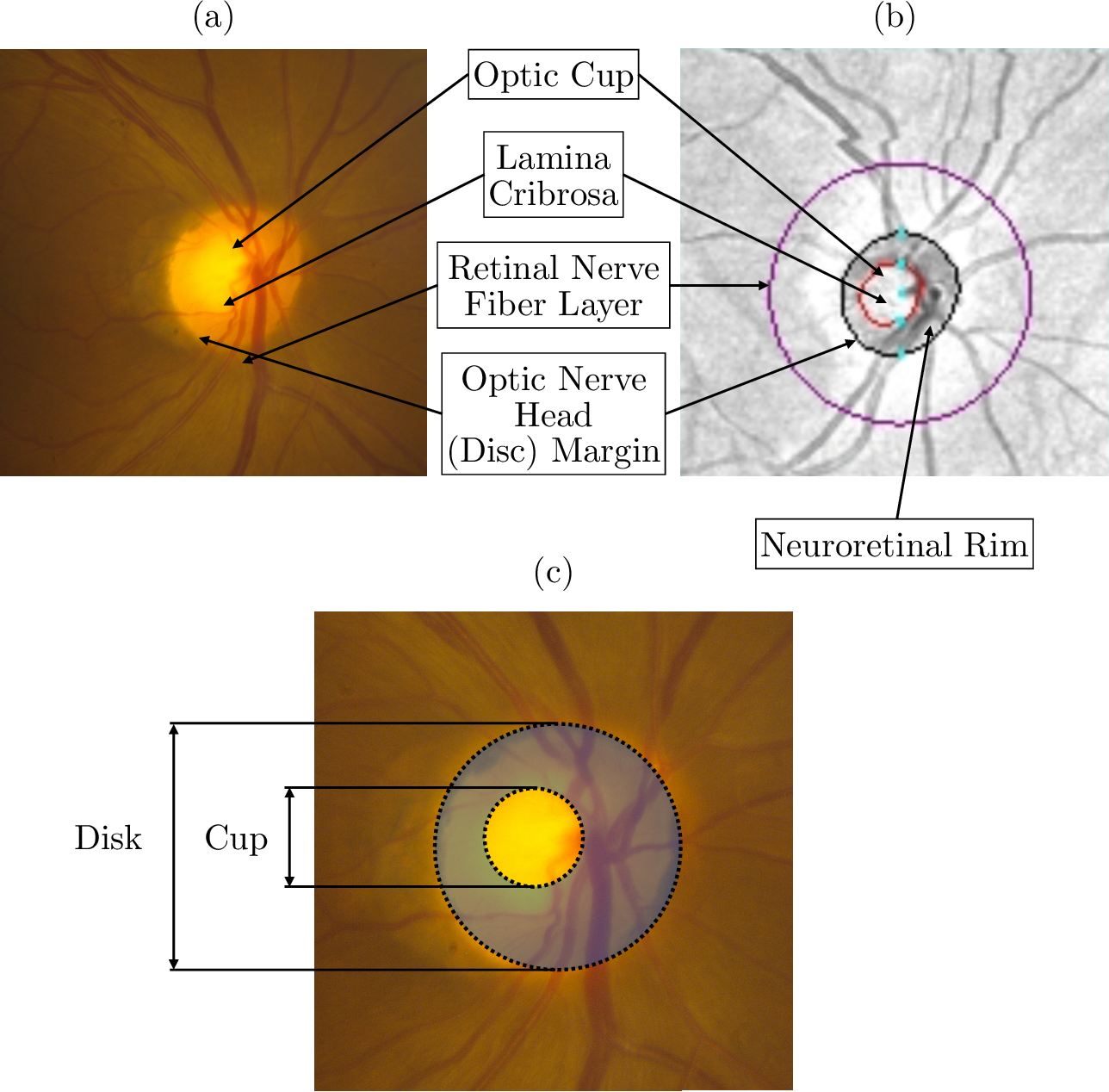 Figure 1 for Detecting Glaucoma Using 3D Convolutional Neural Network of Raw SD-OCT Optic Nerve Scans