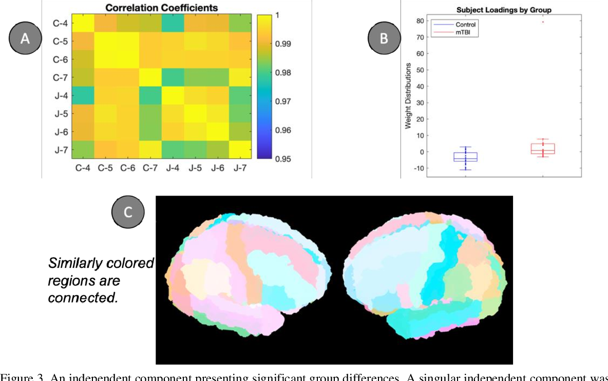 Figure 4 for Joint analysis of structural connectivity and cortical surface features: correlates with mild traumatic brain injury