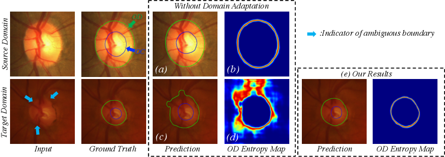 Figure 1 for Boundary and Entropy-driven Adversarial Learning for Fundus Image Segmentation