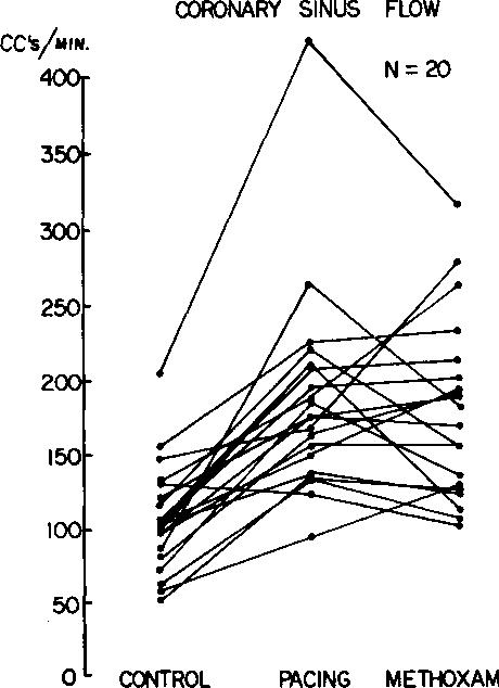 short rp tachycardia diagram