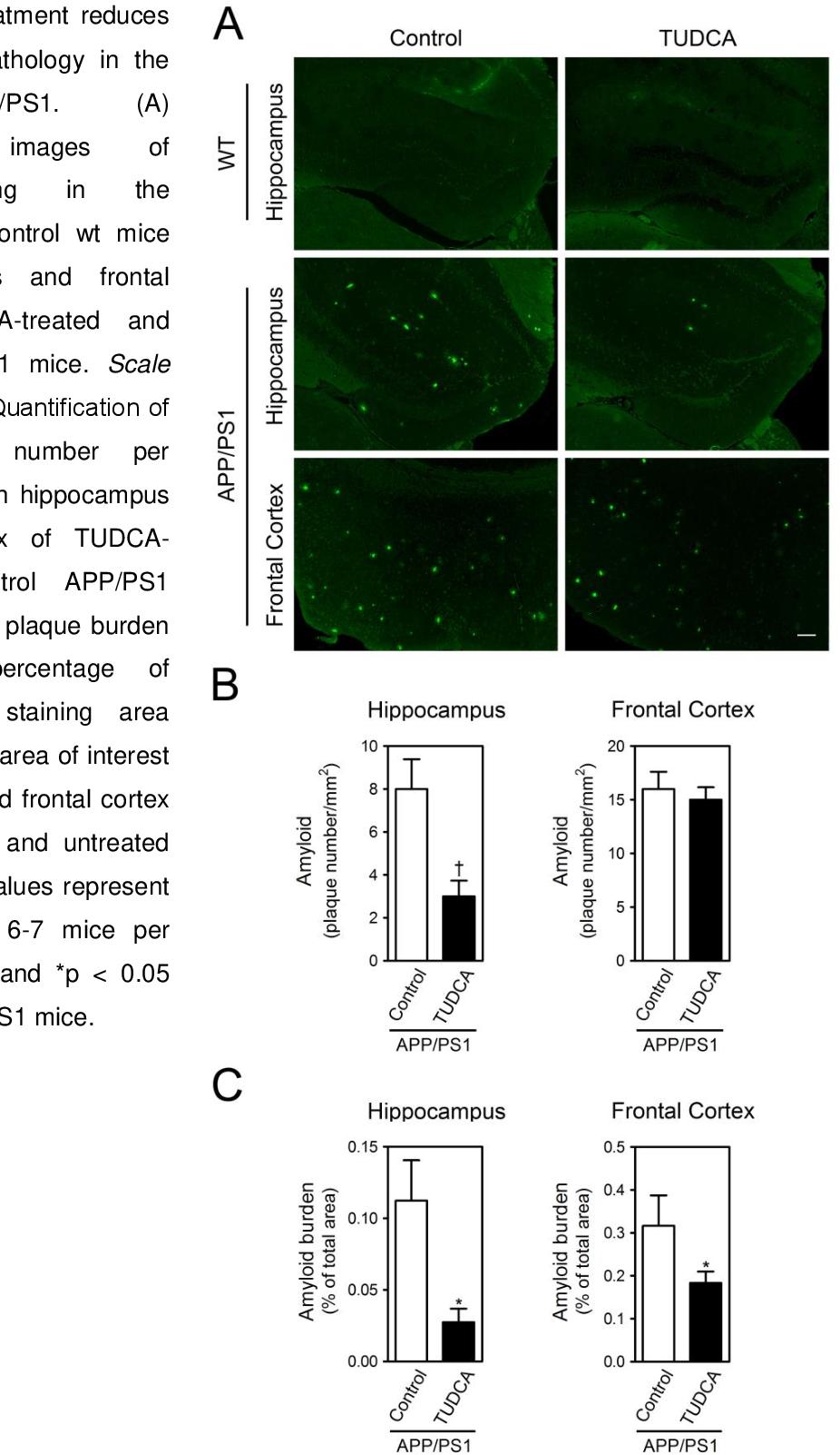 PDF] Using TUDCA to treat Alzheimer's disease after pathology onset