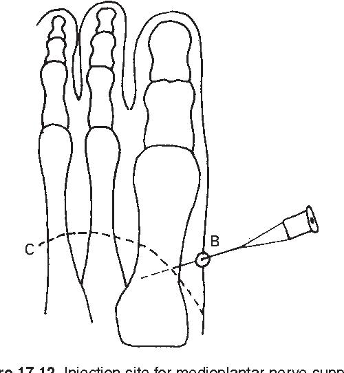 figure 17.12