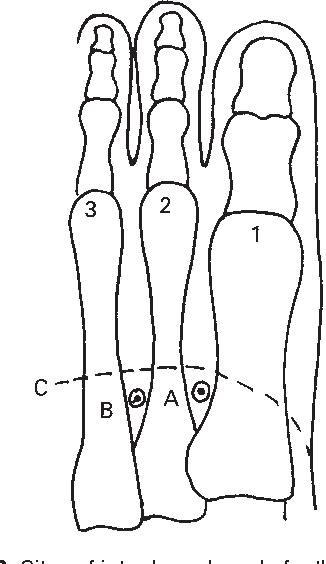 figure 17.23