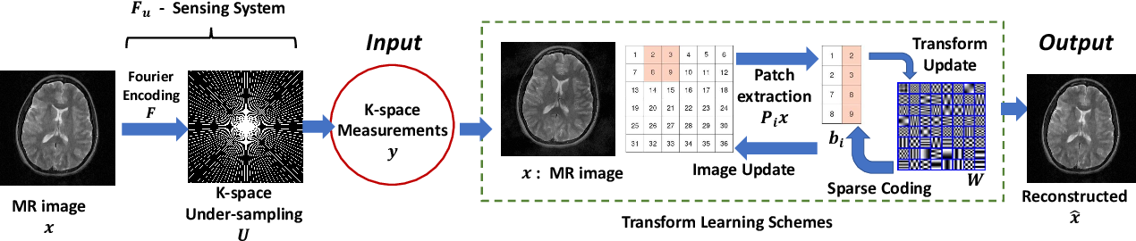 Figure 3 for Transform Learning for Magnetic Resonance Image Reconstruction: From Model-based Learning to Building Neural Networks