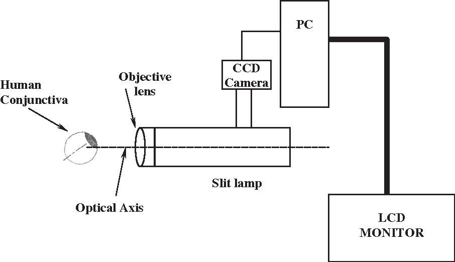 1667a604e0b0 Wall shear stress quantification in the human conjunctival pre ...