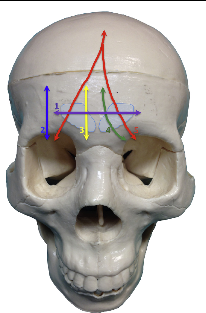 A Novel Classification Of Frontal Bone Fractures The Prognostic