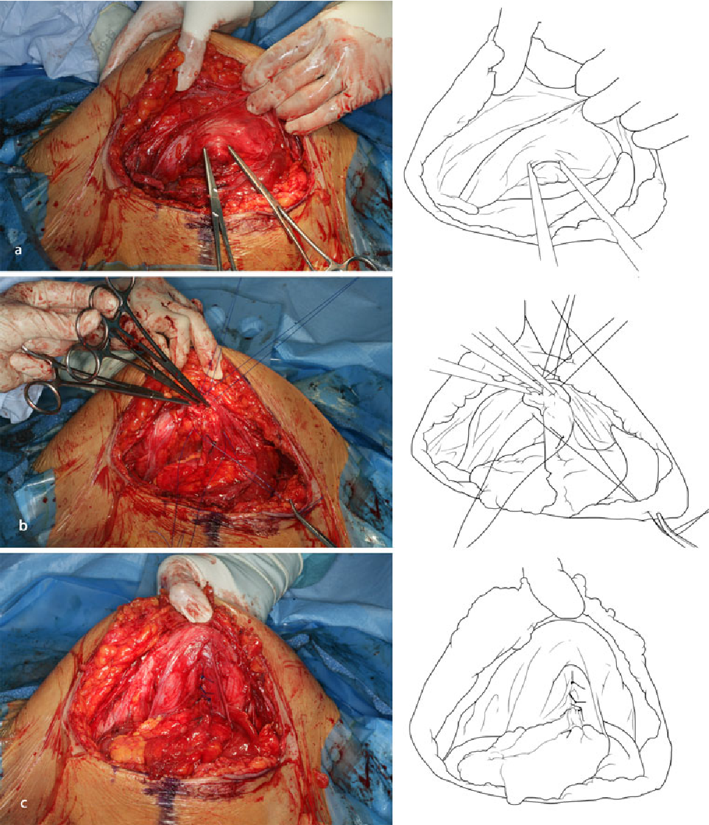 Suture Repair Of Umbilical Hernia During Caesarean Section A Case