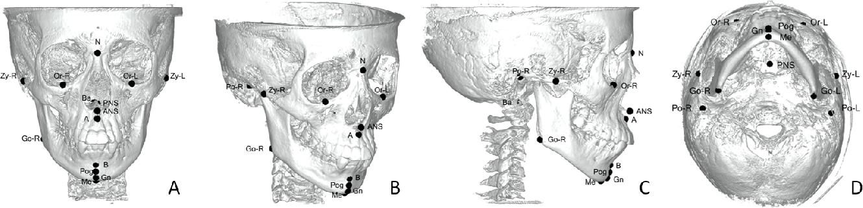 Figure 1 for Structure-Aware Long Short-Term Memory Network for 3D Cephalometric Landmark Detection