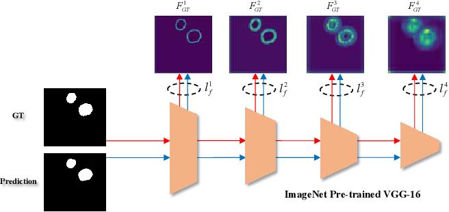 Figure 3 for Automatic Polyp Segmentation via Multi-scale Subtraction Network