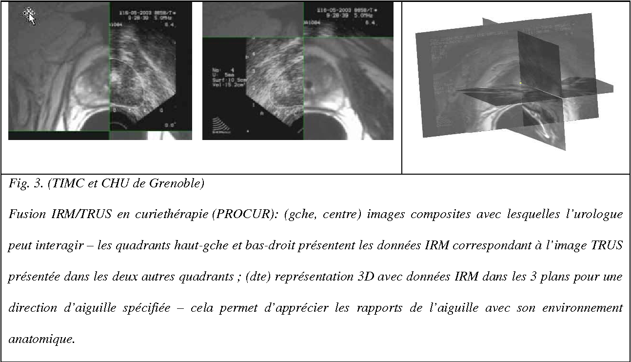 Figure 3 for Computer- and robot-assisted urological surgery