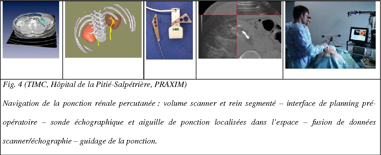 Figure 4 for Computer- and robot-assisted urological surgery