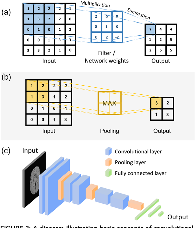 Figure 4 for Deep learning in radiology: an overview of the concepts and a survey of the state of the art