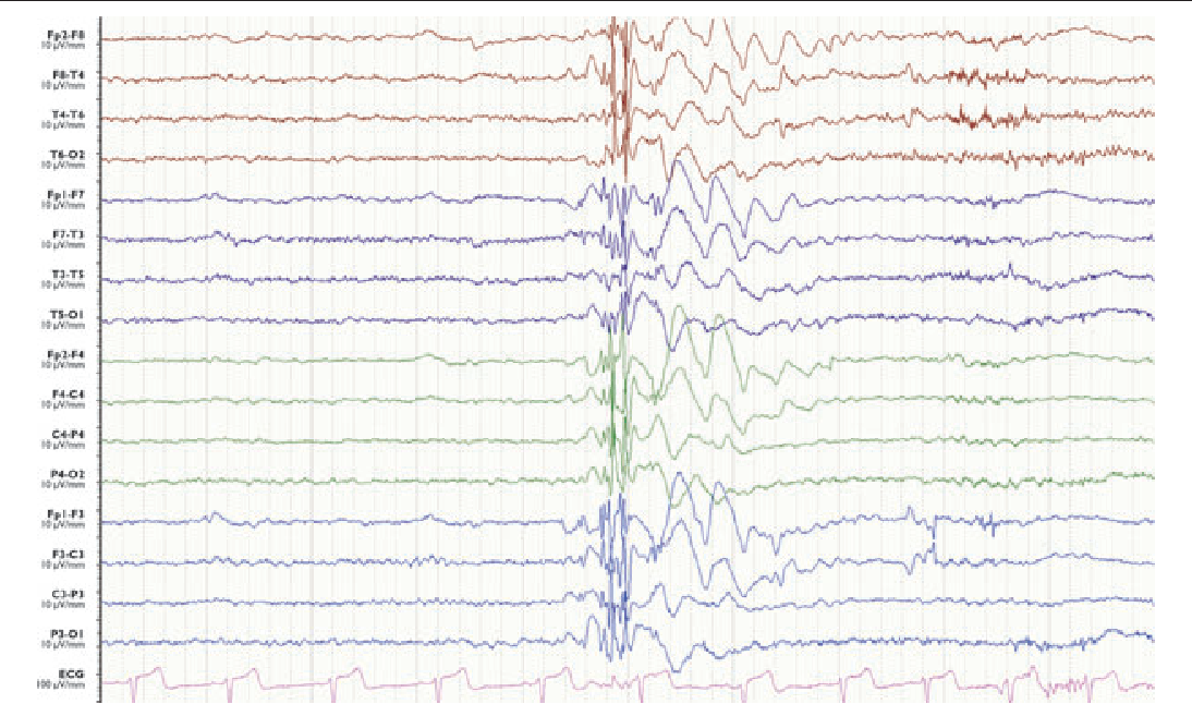 Figure 3. Ictal electroencephalography of a myoclonic seizure in a 15-year-old boy diagnosed with juvenile myoclonic epilepsy. Note high amplitude, generalized polyspikes with frontocentral accentuation followed by 2.5 Hz slow waves.