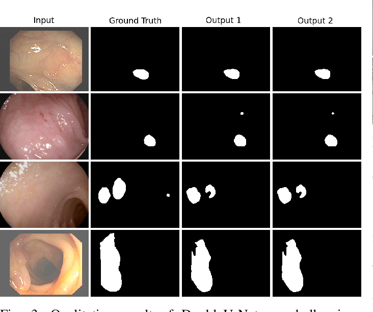 Figure 3 for DoubleU-Net: A Deep Convolutional Neural Network for Medical Image Segmentation