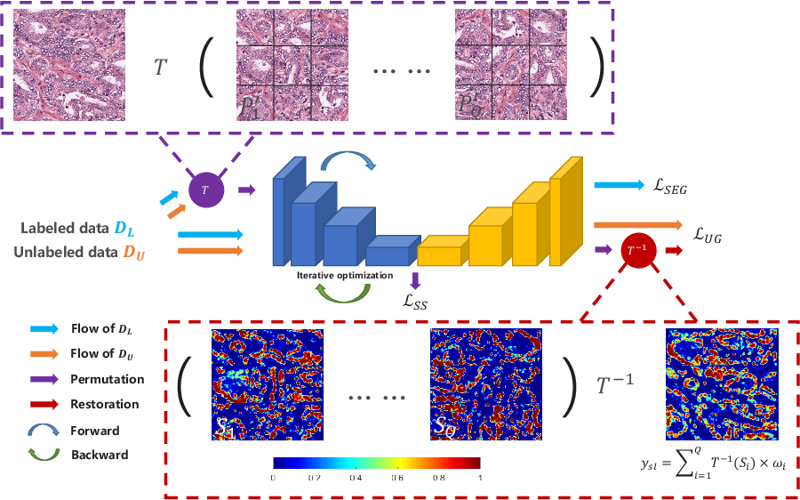 Figure 1 for Self-Loop Uncertainty: A Novel Pseudo-Label for Semi-Supervised Medical Image Segmentation