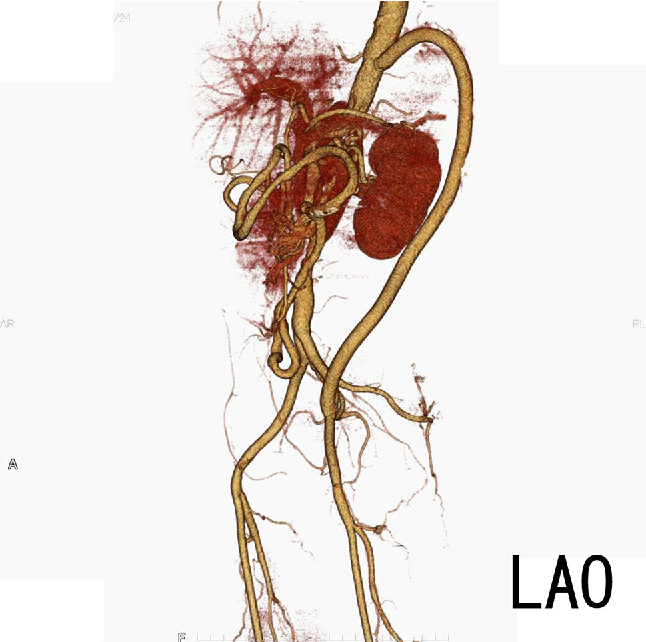 Descending Aortaexternal Iliac Artery Bypass For Middle Aortic