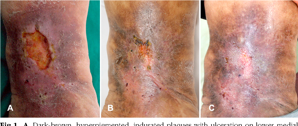 Figure 1 from Refractory lipodermatosclerosis treated with