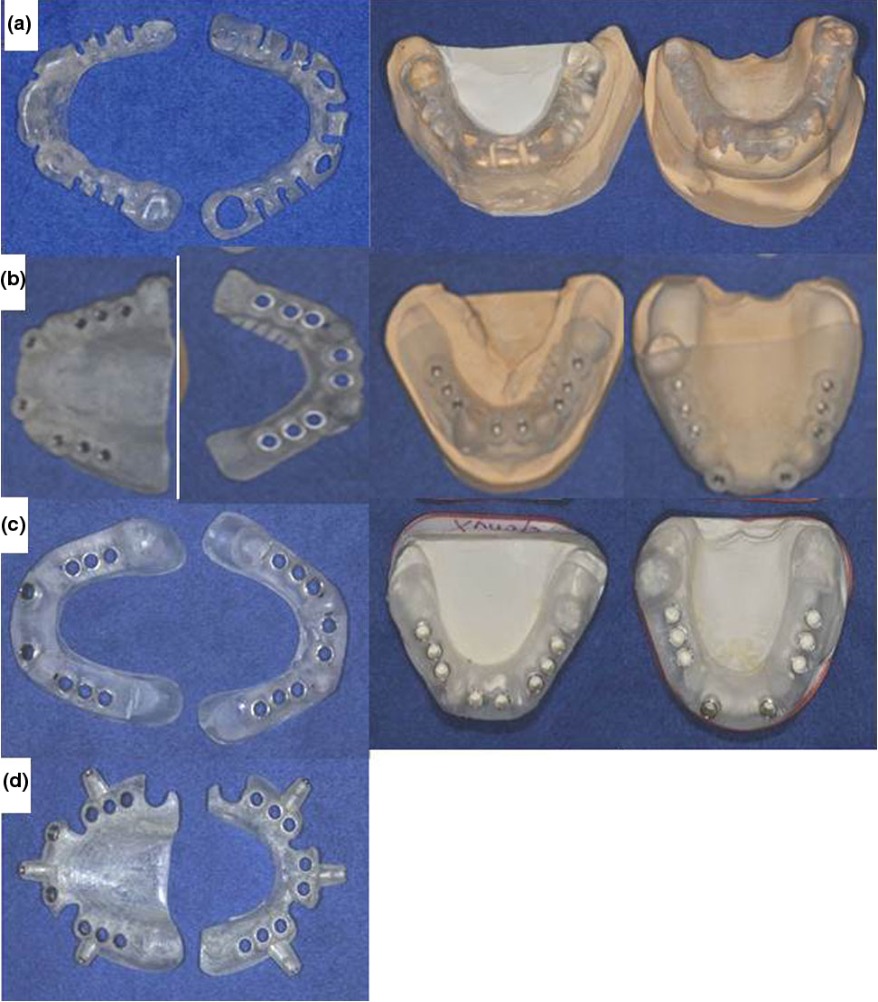 Fig. 3. Surgical guides (maxilla, mandible). (a) Acrylic, laboratory made, (b) Simplant SurgiGuides (c) Straumann surgery templates and (d) NobelGuide surgical templates.