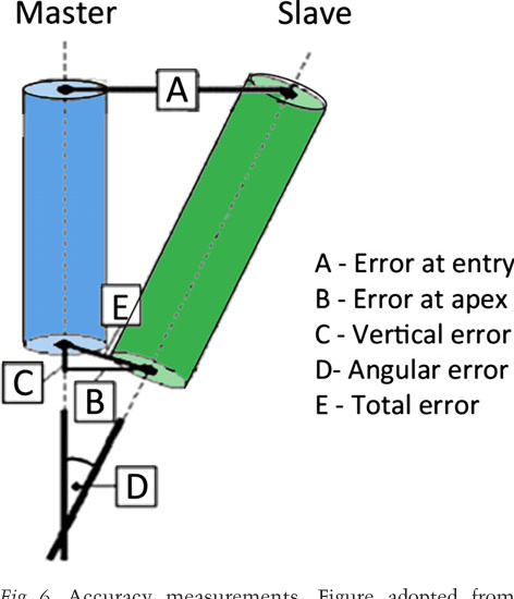 Fig. 6. Accuracy measurements. Figure adopted from Brief et al. (2005) Blue – ideal position of dental implant, green – position to compare to ideal position. (a) error at entry, (b) error at apex, (c) vertical error, (d) angular error, (e) total error.