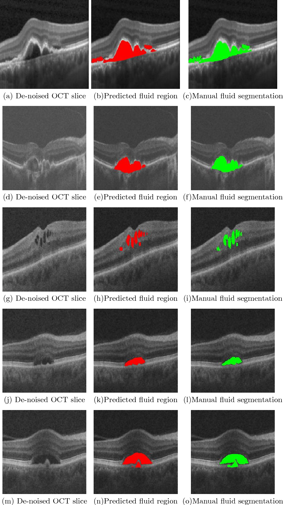 Figure 4 for A Generalized Motion Pattern and FCN based approach for retinal fluid detection and segmentation
