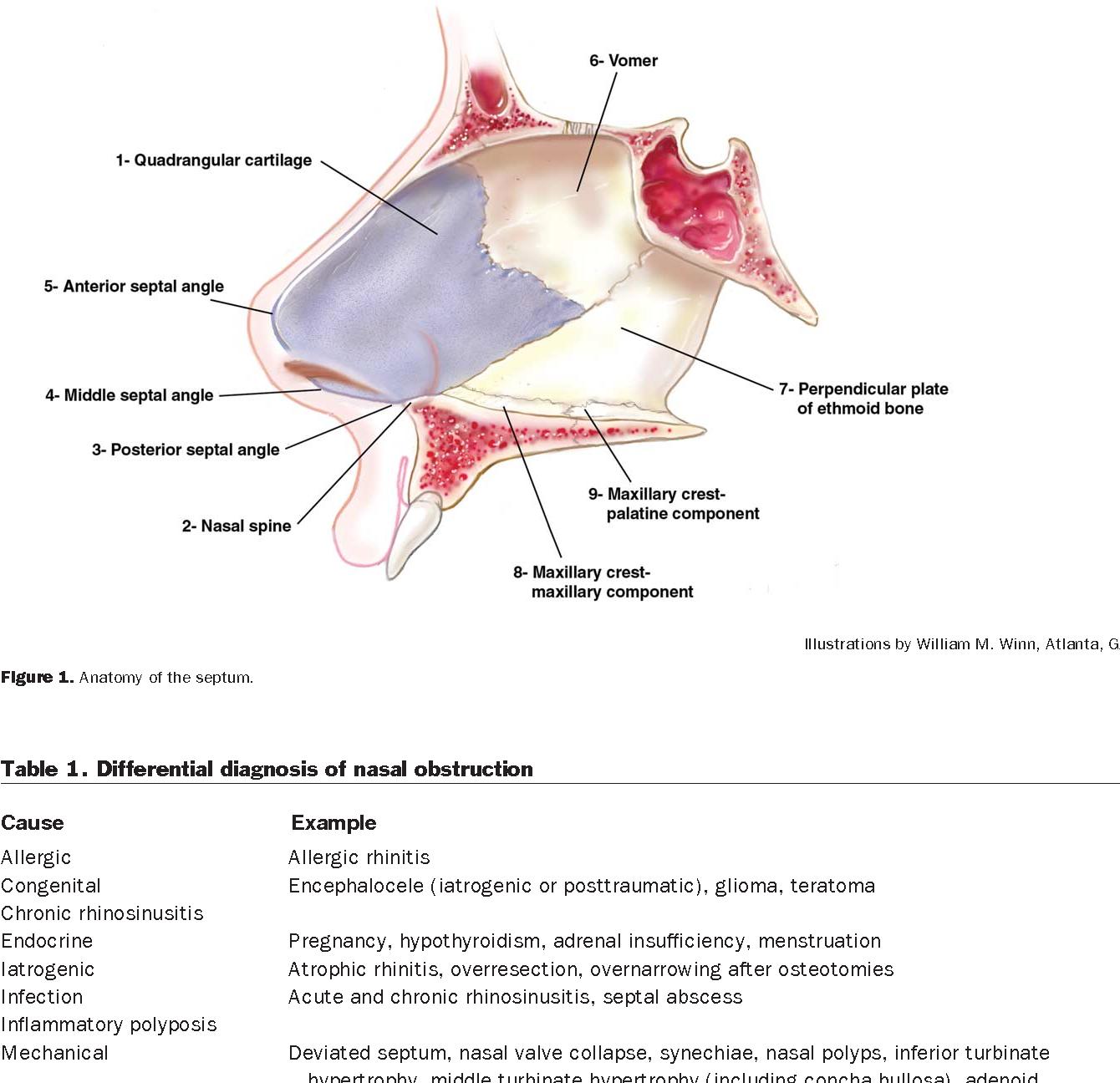 Figure 1 from Septoplasty and turbinate surgery. - Semantic Scholar