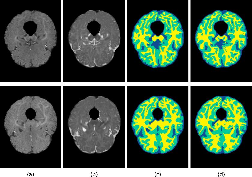 Figure 3 for 3D Densely Convolutional Networks for Volumetric Segmentation