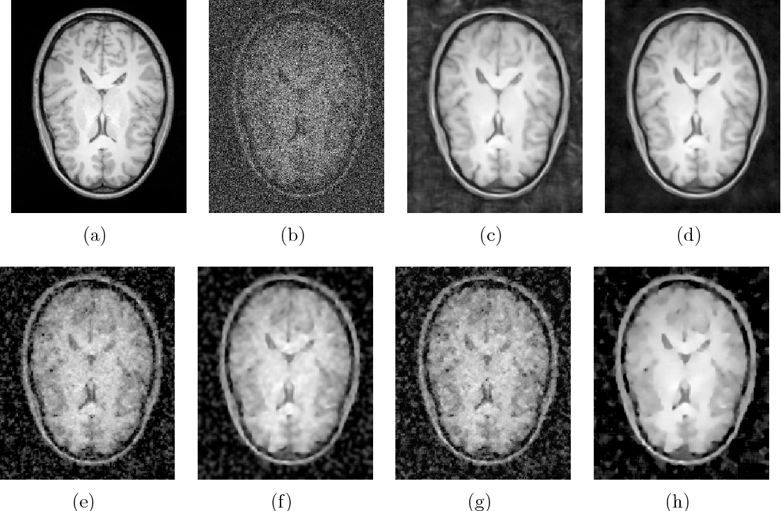 Denoising of 3D magnetic resonance images with multi-channel