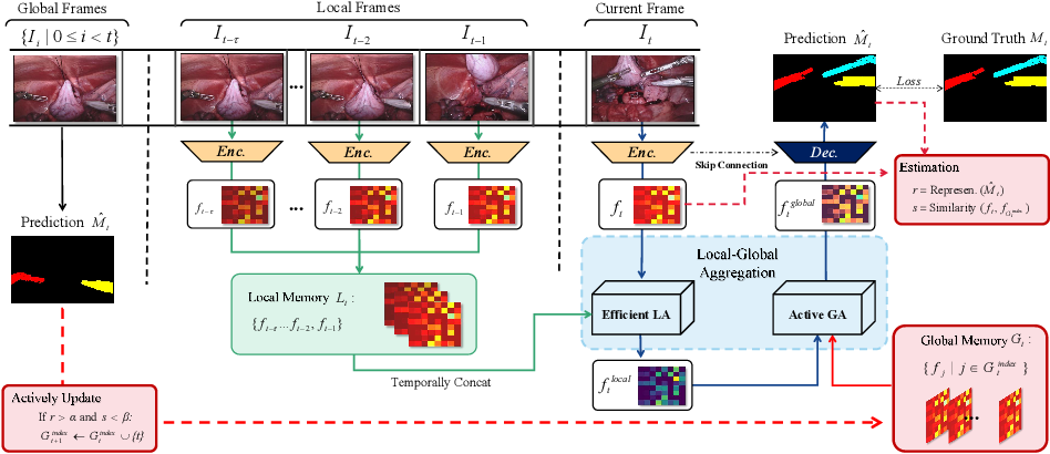 Figure 1 for Efficient Global-Local Memory for Real-time Instrument Segmentation of Robotic Surgical Video