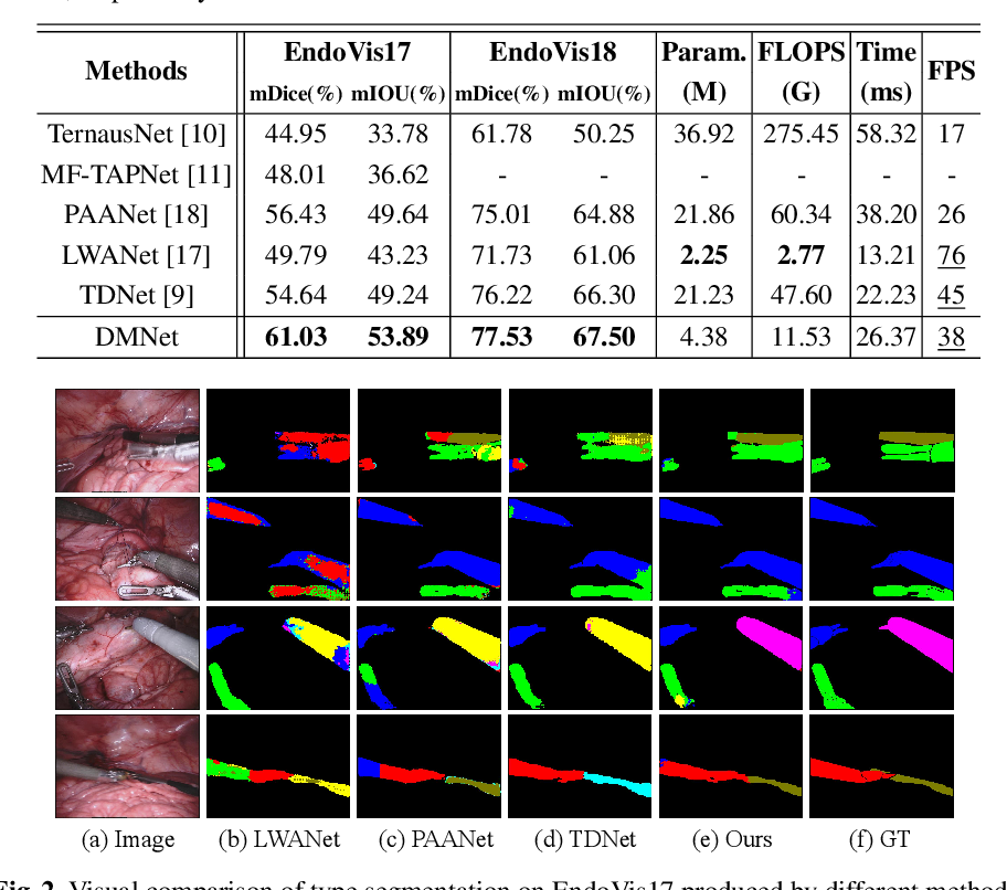 Figure 2 for Efficient Global-Local Memory for Real-time Instrument Segmentation of Robotic Surgical Video