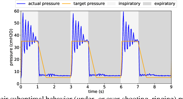 Figure 3 for Machine Learning for Mechanical Ventilation Control
