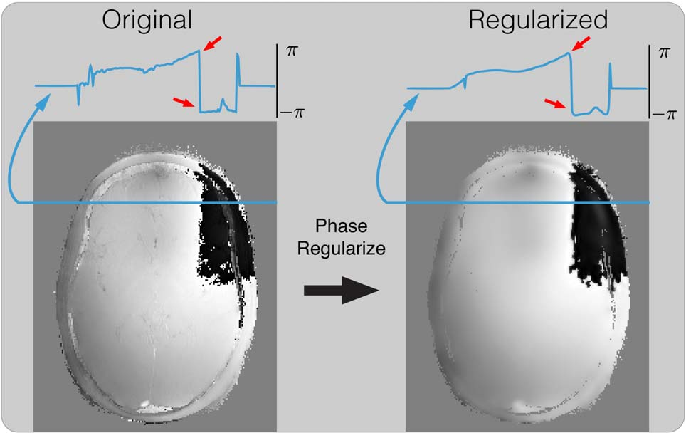 Figure 3 for General Phase Regularized Reconstruction using Phase Cycling