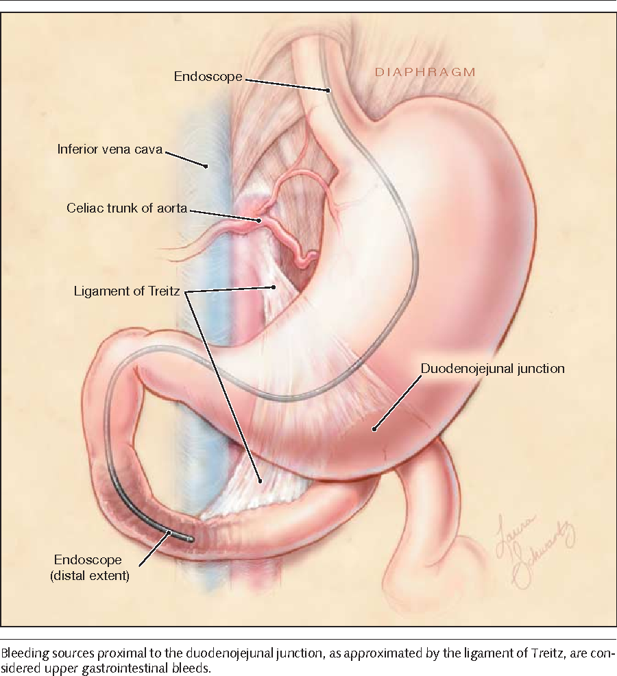 Does This Patient Have A Severe Upper Gastrointestinal Bleed