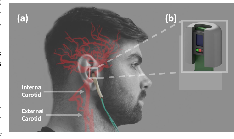 Figure 1 for In-Ear SpO2 for Classification of Cognitive Workload