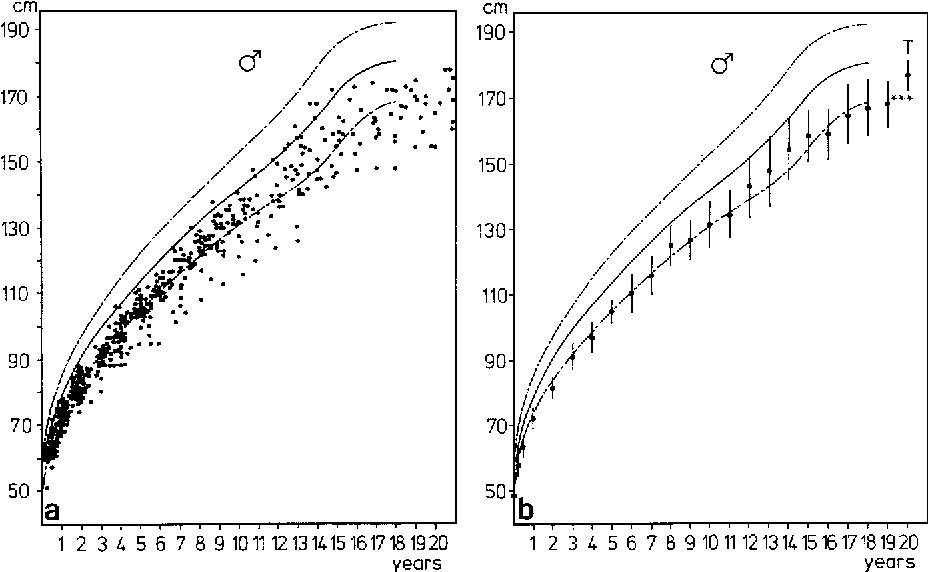 Fig. 3a. Single measurements of height from age 6 months to adulthood in male patients with WBS compared to the normal range [1-3, 19]. b Mean (+ 1 SD) height in male patients with WBS from birth to adulthood. T target height