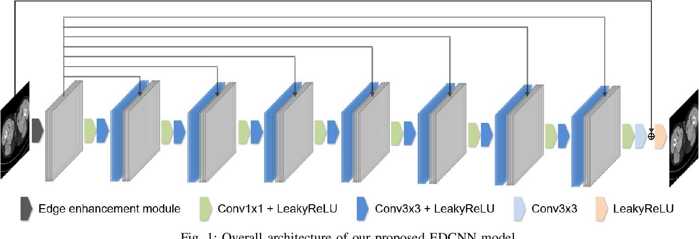Figure 1 for EDCNN: Edge enhancement-based Densely Connected Network with Compound Loss for Low-Dose CT Denoising