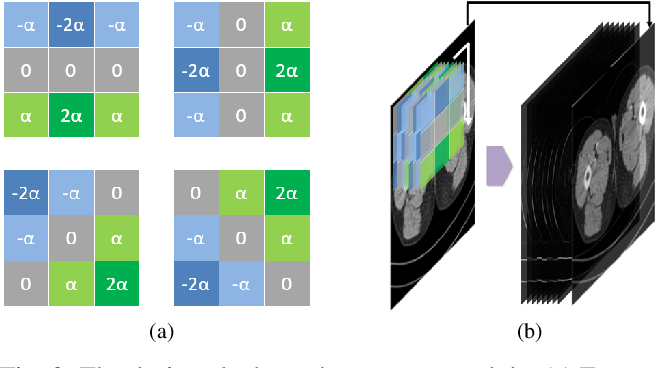 Figure 2 for EDCNN: Edge enhancement-based Densely Connected Network with Compound Loss for Low-Dose CT Denoising