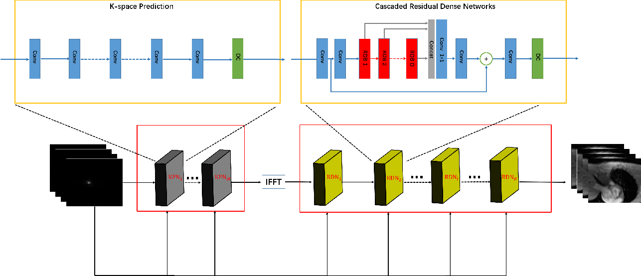 Figure 1 for CRDN: Cascaded Residual Dense Networks for Dynamic MR Imaging with Edge-enhanced Loss Constraint