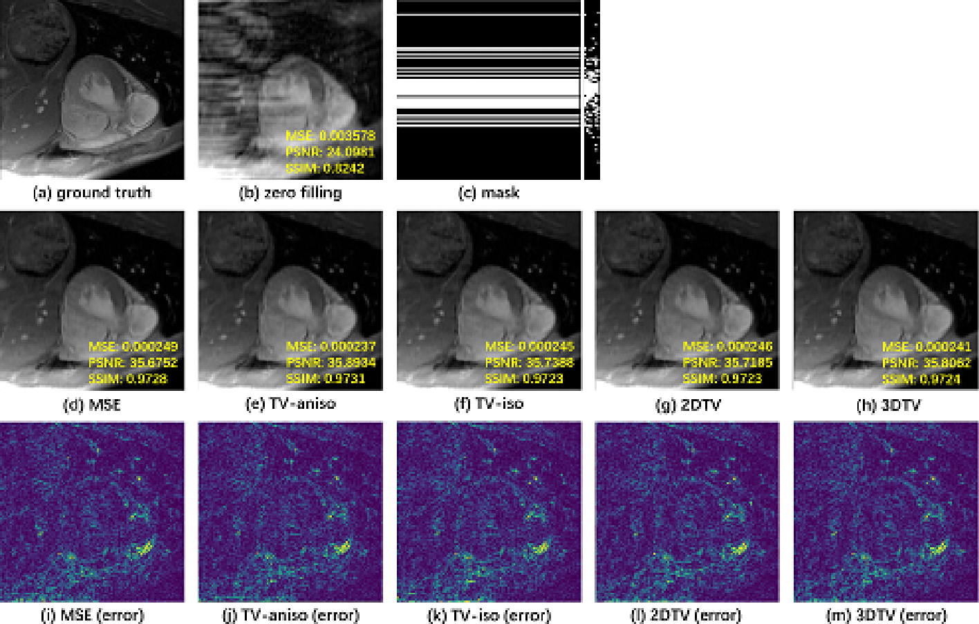 Figure 4 for CRDN: Cascaded Residual Dense Networks for Dynamic MR Imaging with Edge-enhanced Loss Constraint