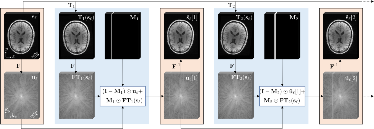 Figure 1 for Learning-based Motion Artifact Removal Networks (LEARN) for Quantitative $R_2^\ast$ Mapping