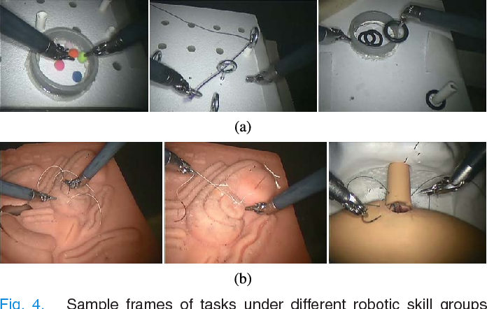 Figure 4 for Detection and Localization of Robotic Tools in Robot-Assisted Surgery Videos Using Deep Neural Networks for Region Proposal and Detection