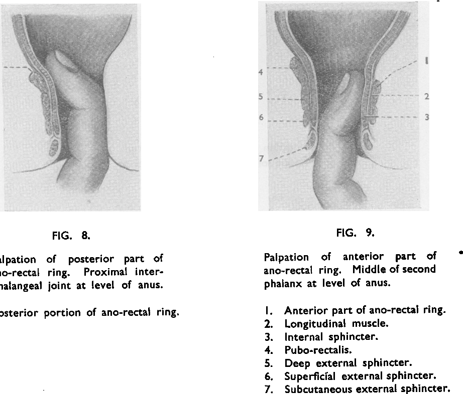 Figure 9 From The Surgical Anatomy Of The Anal Canal And Rectum