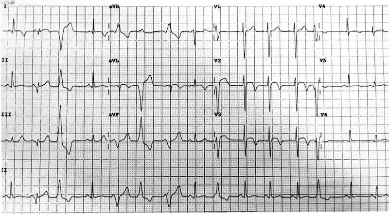 Figure 1. The patient's initial ECG shows sinus rhythm, with frequent multifocal ventricular ectopics and 2-mm ST-segment elevation with T-wave inversion in leads V2 and V3.