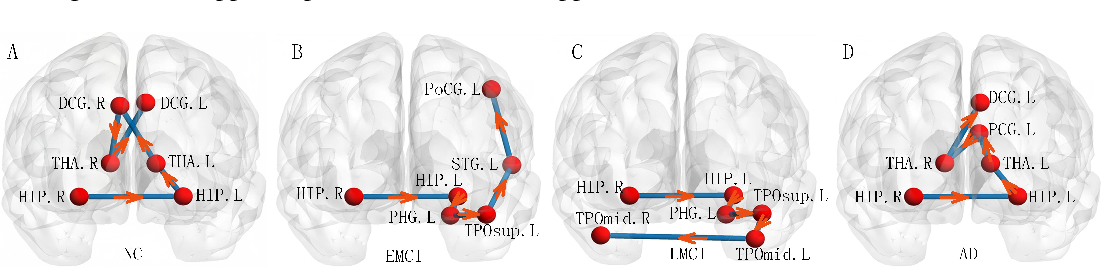 Figure 4 for Ordinal Pattern Kernel for Brain Connectivity Network Classification