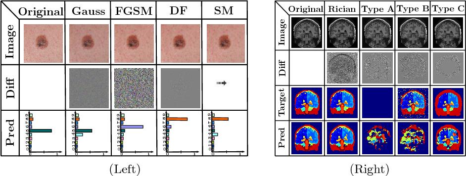Figure 3 for Generalizability vs. Robustness: Adversarial Examples for Medical Imaging