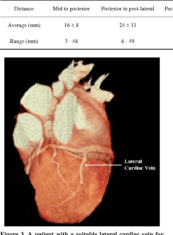 Evaluation of Coronary Venous Anatomy by Multislice Computed ...