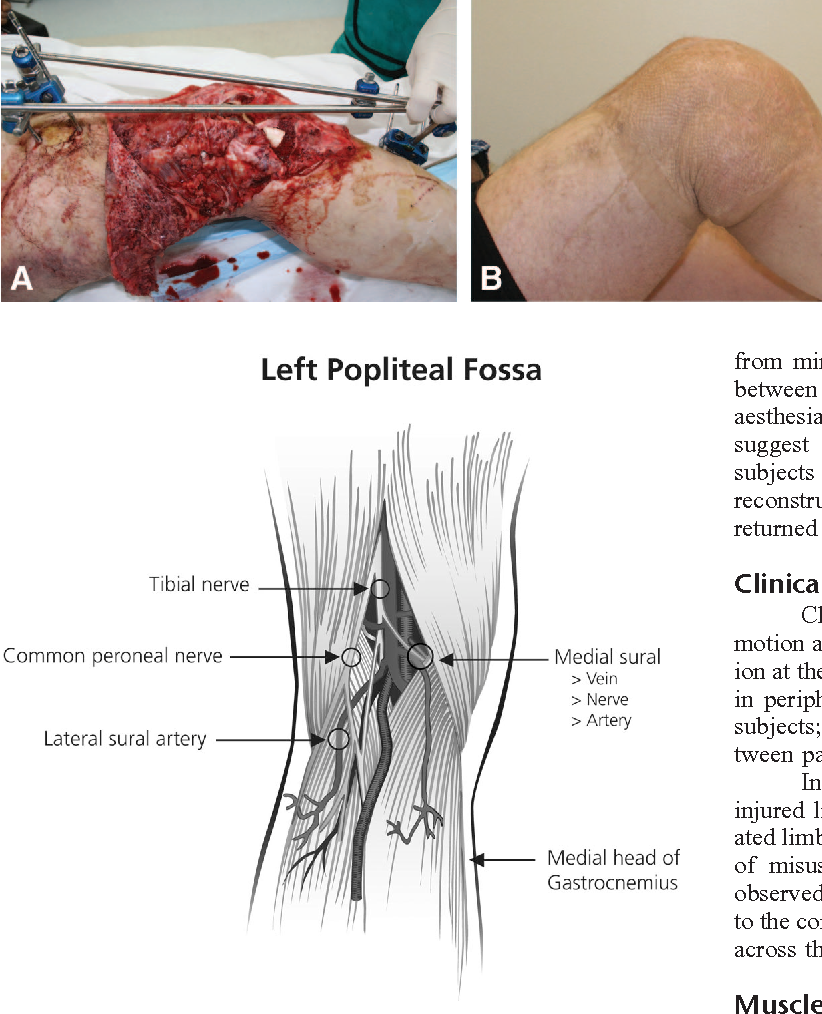 The Medial Sural Artery As Recipient Vessel And The Impact On The