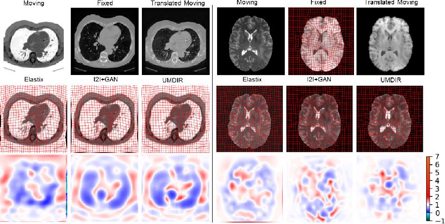 Figure 4 for Unsupervised Deformable Registration for Multi-Modal Images via Disentangled Representations