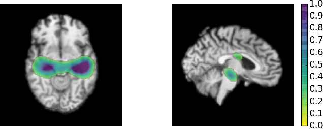 Figure 4 for Residual and Plain Convolutional Neural Networks for 3D Brain MRI Classification