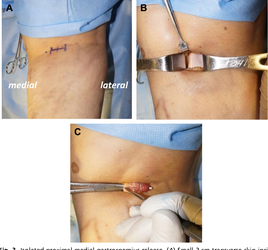 Figure 3 From Surgical Techniques Of Gastrocnemius Lengthening