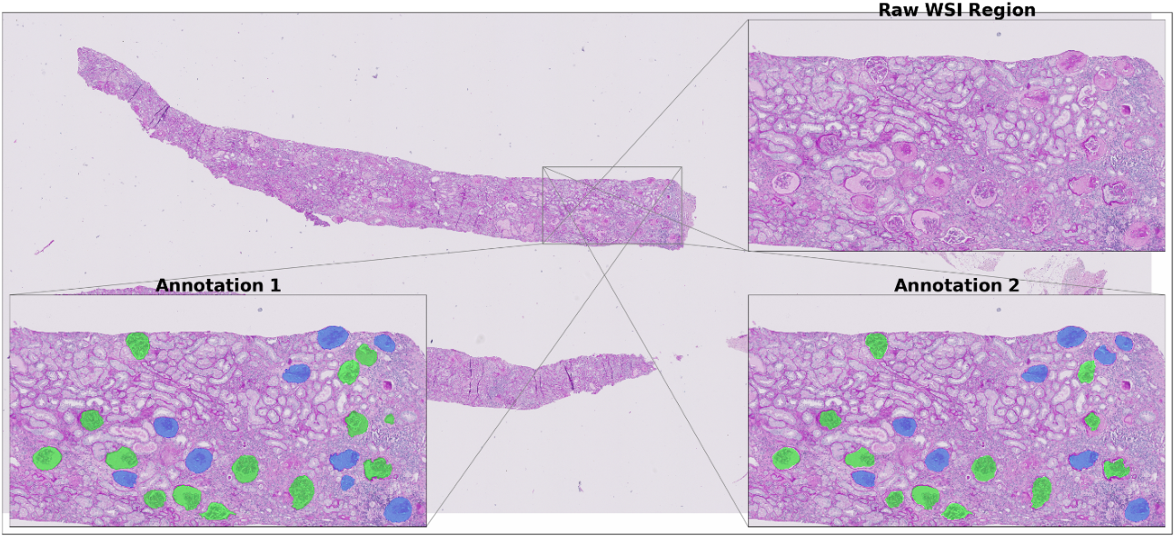 Figure 2 for U-Net-and-a-half: Convolutional network for biomedical image segmentation using multiple expert-driven annotations
